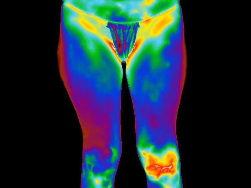 Thermogram of patient with left knee trauma