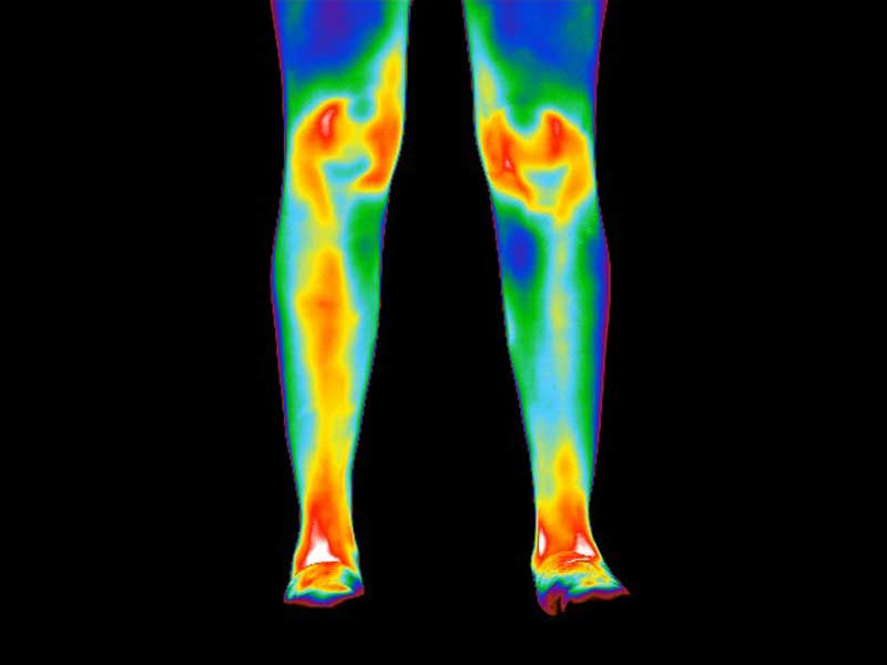 Thermogram of legs of patient with rheumatoid arthritis