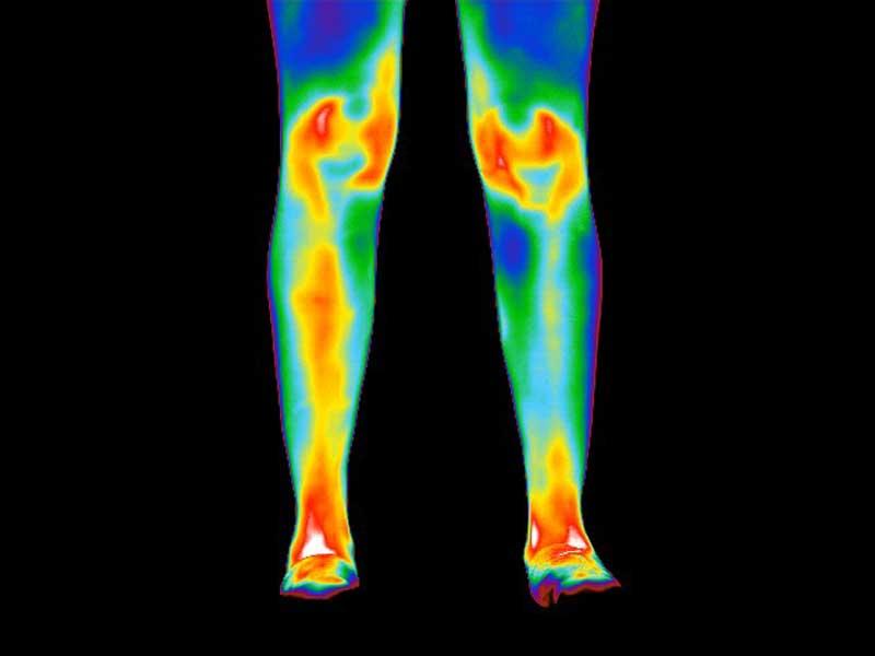 Thermogram of legs of patient with rheumatoid arthritis