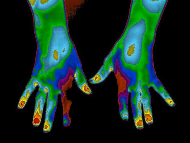 Thermogram of hands of diabetic patient