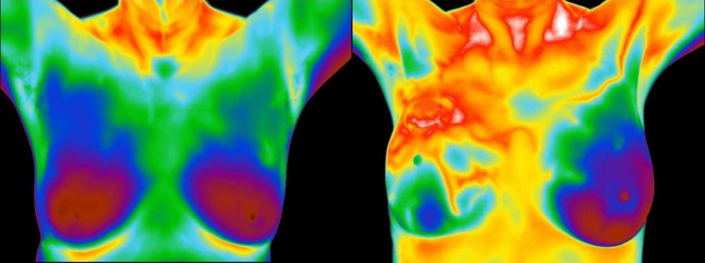 Breast thermograms